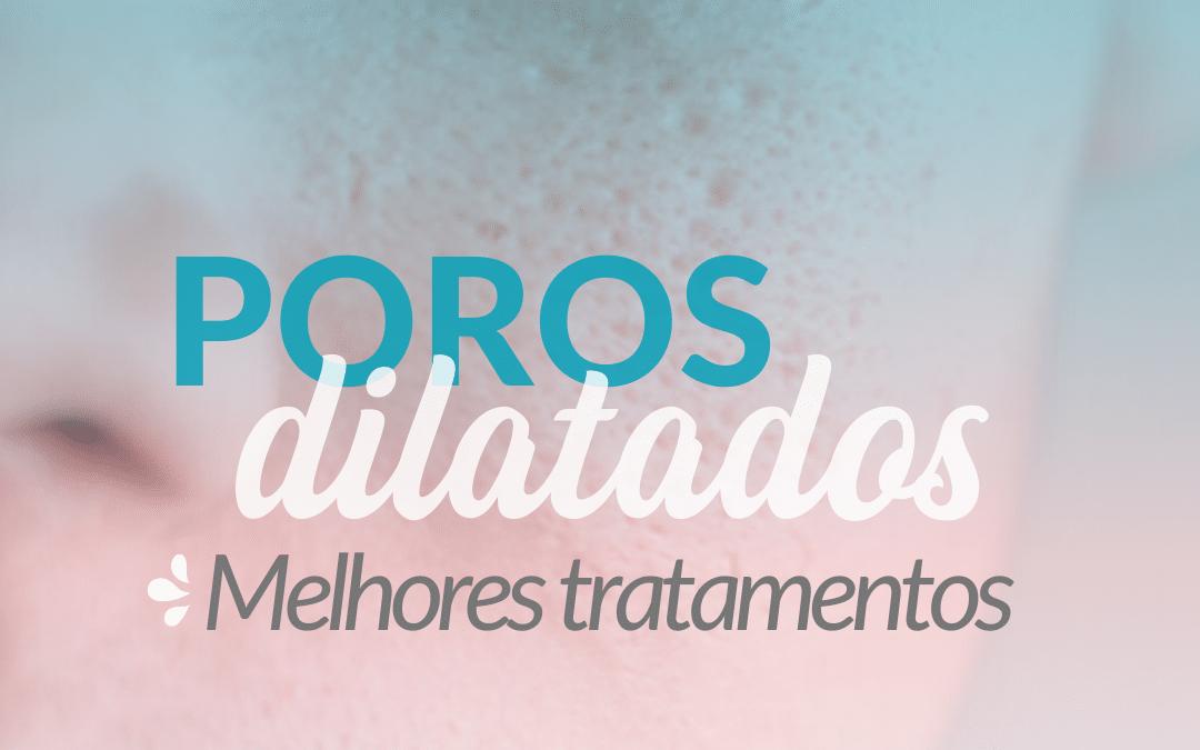 Poros dilatados – melhores tratamentos